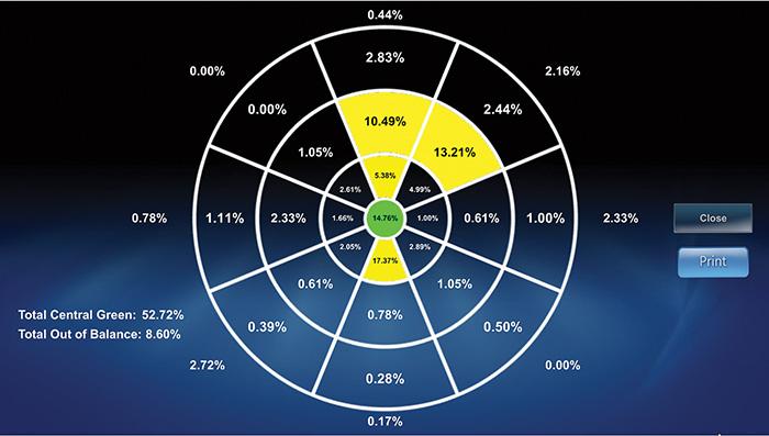 NSI Balance Graph